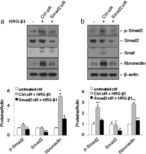 Knockdown of Smad2 suppresses HRG-β1-induced expressions of Snail and fibronectin in SK-BR-3 (a) and MCF7 (b) cells. (a, b) The cells were transfected with control or Smad2 siRNAs prior to treatment with 25 ng/ml of HRG-β1. After incubation for a further 24 h, the expressions of phospho-Smad2, Smad2, Snail, and fibronectin were analyzed by western blotting. β-actin was reprobed as a loading control. Data represent the means ± SD of three independent experiments. *P < 0.05, **P < 0.01, significant difference.