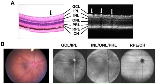 Comparison of retinal images obtained by fundus photography, OCT, and histology in B10.RIII mouse.A, Normal retinal layers in a healthy eye assessed by cross-sectional OCT in comparison with histology. Note the appearance of the ganglion cell layer (GCL), inner plexiform layer (IPL), inner nuclear layer (INL), outer nuclear layer (ONL), IS/OS of photoreceptor layer (PRL), retinal pigment epithelium (RPE) and choroid (CH) in the respective images. Blood vessels are indicated by arrows. B, Comparison of fundus appearance by Micron II imaging with OCT volume scan images in multiple retinal layers of normal eye.