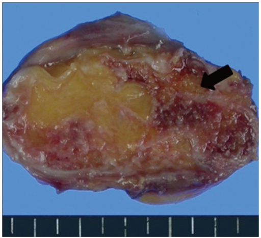 Grossly, the tumor consists largely of fat and calcification presented with the red bone marrow (black arrow).