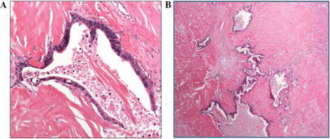 Pathological examination demonstrated that the tumor was (A) a scirrhous adenocarcinoma and (B) predominantly consisted of fibrosis and necrosis tissue [stain, hematoxylin and eosin; magnification (A) ×200 and (B) ×40.