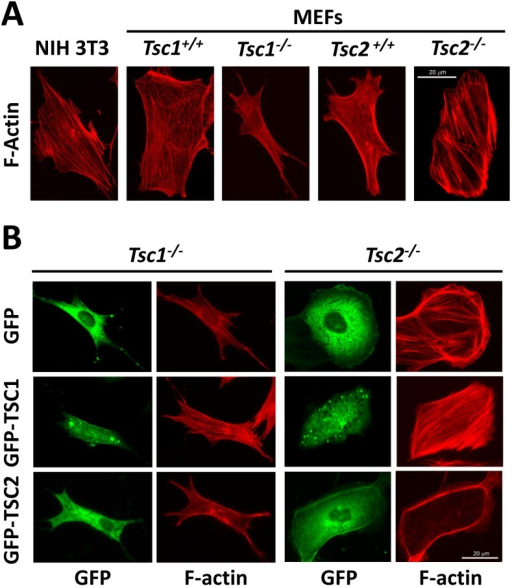 Effects of TSC1 and TSC2 on actin cytoskeleton.A: F-actin staining of serum-deprived NIH 3T3 fibroblasts and matched Tsc1+/+, Tsc1−/− and Tsc2+/+, and Tsc2−/− MEFs. B: F-actin staining (red) of Tsc1−/− and Tsc2−/− MEFs transfected with either GFP-TSC1, GFP-TSC2, or GFP. Representative images of two separate experiments were taken using a Nikon Eclipse TE-2000E microscope at 200x magnification. Scale bar, 20 µm.