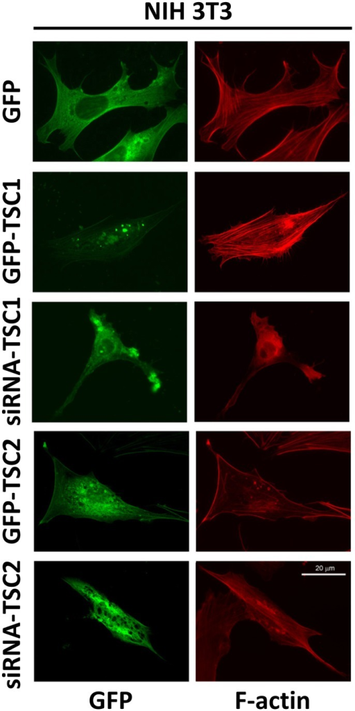 Effects of expression and siRNA-induced down-regulation of TSC1 and TSC2 in NIH 3T3 fibroblasts on actin cytoskeleton.Serum-deprived NIH 3T3 fibroblasts were transfected with GFP-TSC1, GFP-TSC2, or control GFP or microinjected with siRNA TSC1 or siRNA TSC2 and GFP followed by rhodamine phalloidin staining to detect F-actin (red) and immunostaining with anti-GFP antibody (green) to identify transfected or injected cells. Scale bar, 20 µm.