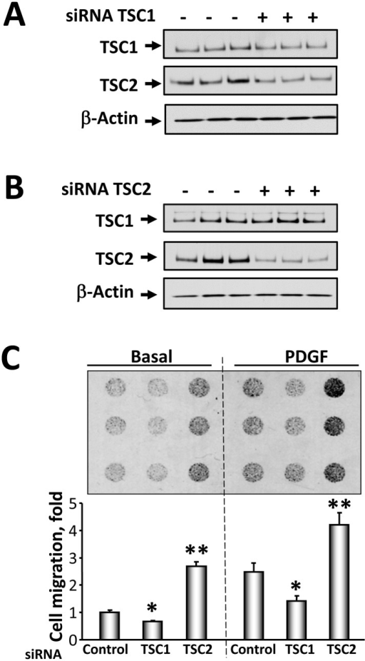 siRNATSC1 and siRNATSC2 induce opposite effects on NIH 3T3 fibroblast migration.Cells were transfected with siRNA TSC1 (A), siRNA TSC2 (B), or control siRNA. 48 h post-transfection, protein levels were detected by immunoblot analysis with anti-TSC1 or anti-TSC2 antibodies. C, Upper panel: Representative image of hemacolor-stained membrane with migrated NIH 3T3 fibroblasts for 4 h. 3T3 fibroblasts were transfected with siRNA TSC1, siRNA TSC2, and siGLO RISC-Free siRNA as control cells, serum-deprived followed by migration assay in the presence or absence of 10 ng/ml PDGF performed in triplicate for each experimental condition. C, Lower panel: Statistical analysis of NIH 3T3 cell migration. Data represent mean values ± SE from two independent experiments, six repetitions in each experiment. *P<0.01 for siRNA TSC1 vs. control siRNA, **P<0.001 for siRNA TSC2 vs. control siRNA by ANOVA (Bonferroni-Dunn).