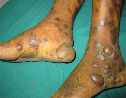 Multiple, dusky red, large nodules and plaques on the legs