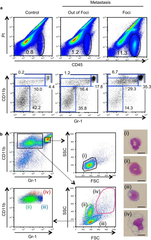 Accumulation of four distinct types of myeloid cells in the metastatic liver foci a Cells were isolated from the liver, on or off the foci, on day 14 post-inoculation, and were analyzed by flow cytometry. CD45+ hematopoietic cells circled in the upper panels were further analyzed for expression of CD11b and Gr-1 in the lower panels. Numbers in panels are the percentage of CD45+ cells (top) or those of the gated subpopulations within CD45+ cells (bottom). b Identification of four distinct types of myeloid cells from the metastatic liver foci. The CD45+ cells collected from the metastatic foci on day 14 were analyzed for CD11b and Gr-1 (top left). CD11b+ Gr-1high cells (top center) and CD11b+ Gr-1low cells (lower center panel) were further analyzed for the forward and side scatters (FSC and SSC, respectively). Lower left panel shows the distribution of cell populations '(ii)–(iv)' re-analyzed for expression of CD11b versus. Gr-1. Cytospin specimens of four distinct populations (i)–(iv) were subjected to Wright-Giemsa staining (right). Scale bars, 10 μm