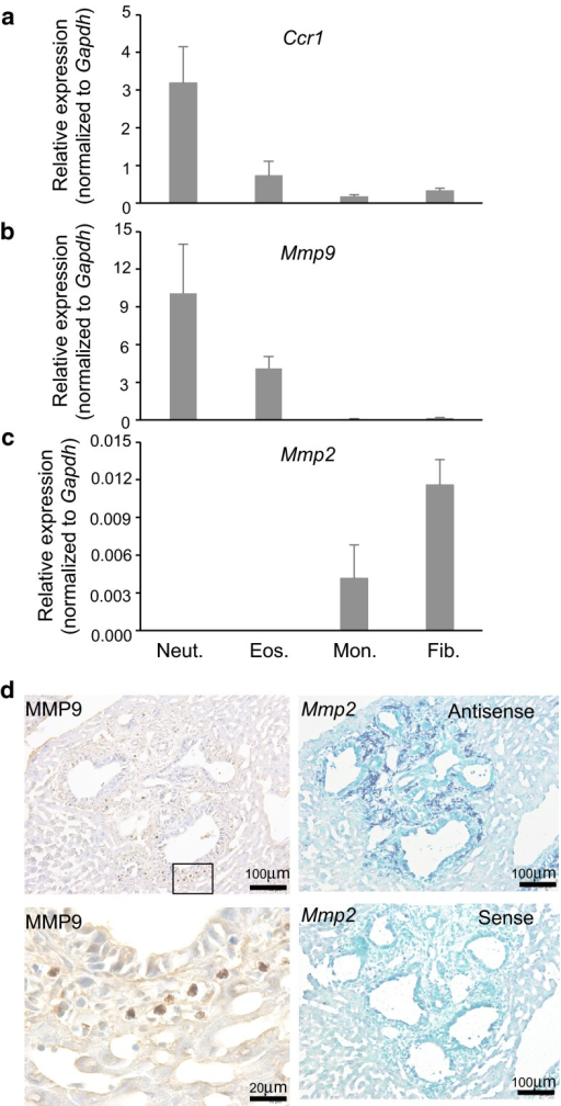 Neutrophils and fibrocytes facilitate liver metastasis by producing metalloproteinases, MMP9 and MMP2, respectively. a–c Myeloid cell subpopulations isolated from metastatic foci on day 14 post-transplantation were subjected to real-time RT-PCR quantification of mRNAs encoding Ccr1 (a), MMP9 (b), or MMP2 (c). Results are presented as relative ratios to the level of Gapdh mRNA, with the mean ± S.D. (n = 3) Neut., neutrophils; Eos., eosinophils; Mon., monocytes; Fib., fibrocytes. d Distinct localization of cells expressing MMP9 or MMP2 in the metastatic foci. Serial sections from the liver metastatic foci on day 14 were subjected to immunohistochemistry for MMP9 (left) or in situ hybridization for MMP2 mRNA (right). Lower left photo is a higher magnification of the boxed area in the upper left. Scale bar, 100 μm