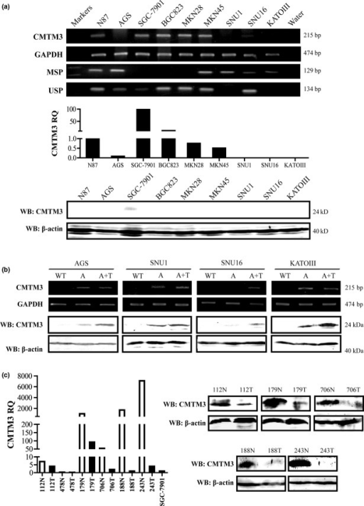 (a) Expression and methylation status of CMTM3 in cell lines was detected by RT-PCR, methylation-specific PCR (MSP), unmethylation-specific PCR (USP), and quantitative PCR. Western blotting (WB) confirmed the expression of CMTM3. RQ, relative quantity. (b) Expression of CMTM3 was detected by RT-PCR and WB after treatment with demethylation agent. A, cells treated with 5-aza-2′-deoxycytidine; A+T, cells treated with 5-aza-2′-deoxycytidine and trichostatin A; WT, untreated cells; (c) CMTM3 expression in gastric cancer paired tissues was detected by quantitative PCR and WB. Normal mucosae tissues (N) are shown as white columns; tumor tissues (T) are shown as black columns. Gastric cancer cell lines were also analyzed with the same standard, and the relative quantity of SGC-7901 was present.