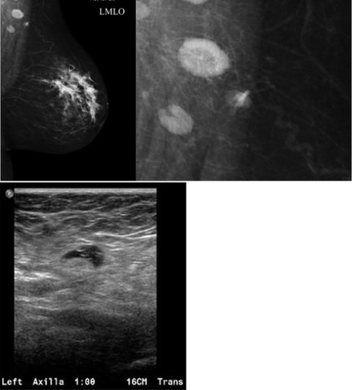 A 47-year-old female with a palpable left breast lump. a Left MLO view with magnified image of the left axilla demonstrates a 1.4 × 1-cm lymph node with eccentric cortical thickening and cortical calcifications. b Transverse image of left axillary lymph node confirms echogenic foci within the thickened cortex suspicious for malignancy. FNA was performed with aspirates sent for routine cytology and flow cytometry. Final diagnosis: metastatic carcinoma