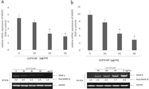 Luteolin-3′-O-β-d-glucopyranoside (LU3′O-GP) reduced mRNA expression of MMP-2 and MMP-9 in ES-2 cells.(a) LU3′O-GP effects on MMP-2 expression; (b) LU3′O-GP effects on MMP-9 expression. mRNA levels were investigated by reverse transcriptase polymerase chain reaction (RT-PCR), using glyceraldehyde 3-phosphate dehydrogenase as the loading control. RT-PCR products were detected by ethidium bromide staining. Values represent the means of triplicate experiments. *p < 0.05, as compared to the control.