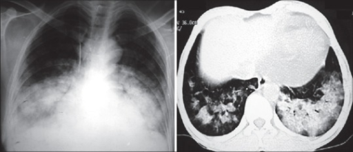 Composite image of the chest radiograph (left) and computed tomography (CT) of the chest (right) of patient 1 with showing bilateral lower lobe consolidation with corresponding asymmetric ground glass opacities and crazy-paving on CT. A clinical diagnosis of alveolar hemorrhage (DAH) was made