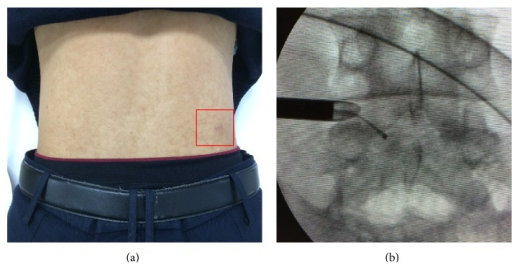 (a) Clinical appearance of the surgical scar after the procedure. (b) Confirmation of the residual cystic mass at the ventral epidural space by a probe.
