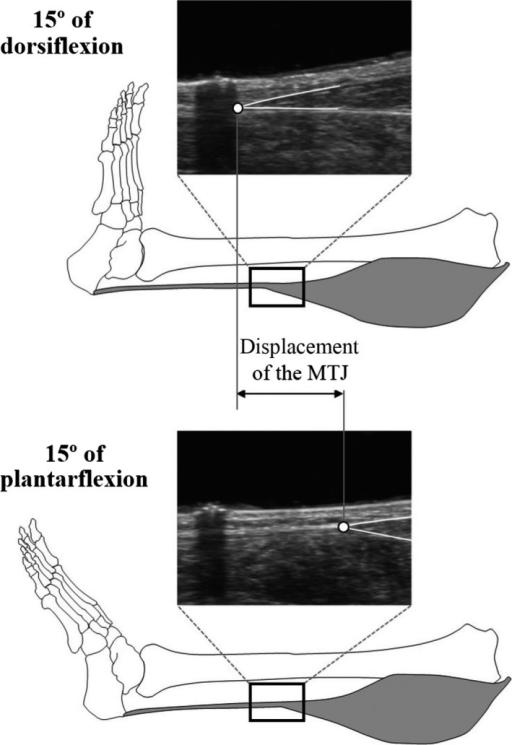 Measurement Of Displacement Of Medial Gastrocnemius Mus Open I