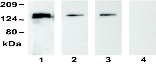 Western blots showing the presence of Shr-specific antibodies in convalescent sera from patients of streptococcal pharyngitis. Purified Shr (50 ng/lane) was resolved by SDS PAGE and analyzed by Western blotting using convalescent sera from three pharyngitis patients (lanes 1–3) and a person without S. pyogenes exposure as negative control (lane 4).
