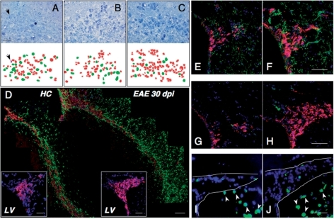 Chronic autoimmune CNS inflammation impairs migration of SVZ neuroblasts. (A–C) Representative toluidine blue-stained semithin sections of the RMS of EAE mice at 30 (A) and 60 dpi (B) and HC (C). The same sections were taken-off, and ultrathin sections were re-cut. Cells were studied at the EM and identified as neuroblasts or astrocytes (red and green in lower panels). Note the disorganization of the RMS of EAE mice at 30 dpi (A), with significantly low numbers of migrating neuroblasts and numerous astrocytes. The RMS of EAE mice at 60 dpi showed a trend to recovery normal morphology (B), as compared with HC (C). The arrow at 30 dpi shows a microglial cell (purple). Scale bar: 20 μm. (D) Sagittal reconstructions of the whole RMS from a representative HC (left panel) and a mouse with EAE at 30 dpi (right panel). Migratory neuroblasts are detected by PSA-NCAM (red), while astrocytes are detected by GFAP (green). Note normal PSA-NCAM+ chains of migratory cells in the HC mouse (left panel). In contrast, the PSA-NCAM+ cells in the RMS of EAE mice at 30 dpi appear deranged in their migratory path toward olfactory bulbs (right panel). EAE mice also display increased numbers of GFAP+ astrocytes within the parenchyma surrounding the RMS. Coronal sections show clear disorganization of migratory chains with less PSA-NCAM+ neuroblasts (purple cells in the magnified inset) at the dorsal SVZ level in EAE mice. Nuclei in magnified insets have been counterstained with DAPI. Scale bars: 50 μm. LV = lateral ventricle. (E–J) Coronal brain sections showing double immunofluorescence for PSA-NCAM (red) and NG2 (green in E and F) or Olig2 (green in G and H). Note the absence of co-staining for both NG2 and Olig2 in EAE mice at 30 dpi (F and H) and HC (E and G). In I and J, NeuN staining (green) is shown in a HC mouse (I) and in a EAE mouse (J) at 30 dpi, respectively. Note that very few cells are stained in the SVZ (surrounded by a continuous line) of both mice while the majority of striatal neurons are stained (arrowheads). In all panels, nuclei have been counterstained with DAPI and the scale bar is 100 μm.