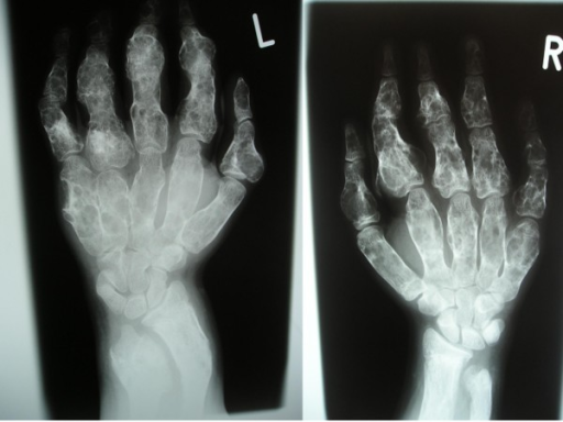 The anteroposterior hands and forearms radiograph showed irregularly expanded metaphyses and shortened diaphyses were curved over the perimetaphyseal region. Ovoid, cystic and highly radiolucent lesions, elongated parallel to the major axis of the bone, originating near the physis and migrating towards the diaphyses with growth. Shortenings, associated with bone bending causing effectively the development of Madelung's-like deformity.
