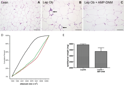 Adipose tissue analysis after lowering of glycosphingolipid content.Haematoxylin and eosin staining of adipose tissue of (A) lean mice, (B) LepOb mice and (C) LepOb mice following reduction of glycosphingolipid content. (D) Analysis of adipocyte cell size distribution in lean mice (black line), in LepOb mice (red line) and in AMP-DNM treated LepOb mice (green line). (E) EWAT weight. Data are depicted on the Y-axis as mean±S.E.M. (n = 5 per group). Actual p values are depicted in the graphs. Bars in the photographs represent 100 µm. The arrows in panel B indicate crown-like structures. For the distribution of adipocyte size at least 150 cells were analysed per animal (for details see methods).