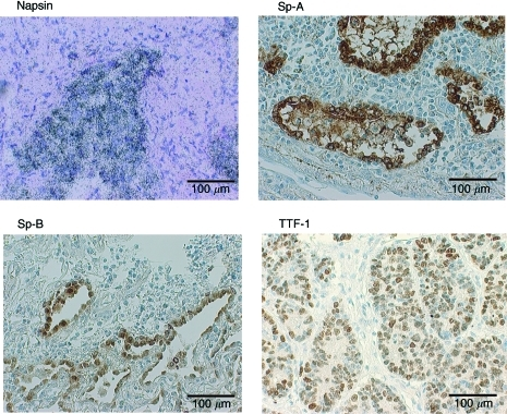 Expression of napsin, Sp-A, Sp-B and TTF-1 in lung adenocarcinoma.