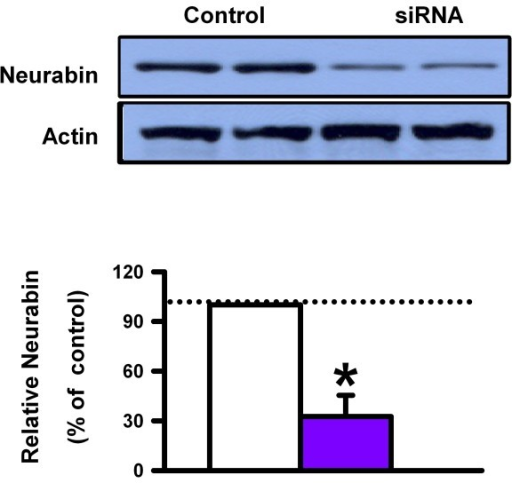 Neurabin siRNA in primary cortical neuron culture. A, Reduction of relative neurabin levels in primary cortical neuron culture by neurabin siRNA.