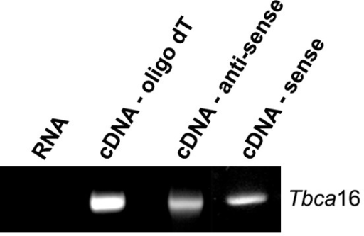 Tbca16 gene codes for a sense and for an antisense transcript.Total RNA was extracted from 14 post-natal days mouse testis and analyzed by RT-PCR. For the cDNA synthesis oligodT (cDNA-oligodT), Tbca16 sequence-specific primer for antisense orientation (cDNA-antisense) or Tbca16 sequence-specific primer for sense orientation (cDNA-sense) were used. The presence of the Tbca16 transcript was analyzed by PCR using specific primers. In every case a single band with the expected size was detected. A PCR performed only with RNA (RNA) as the template was done as a control to detect any residual amplification from a DNA genomic contamination.