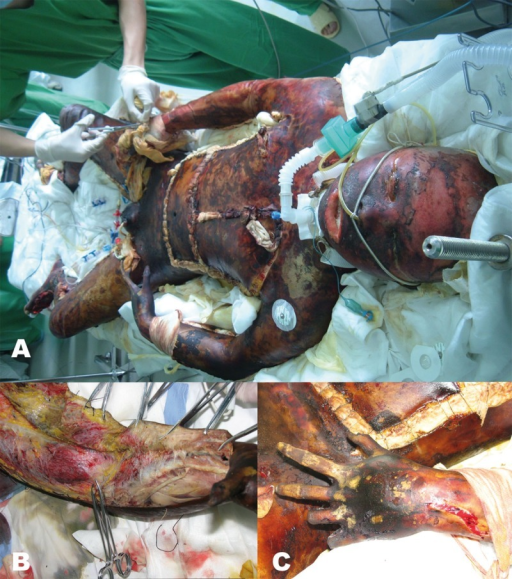 Extraordinary severe burn involving 99.5% TBSA (A); muscular eversion and necrosis are seen in left upper limb like fish meat (B); fingers of left hand are carbonized and necrosed like dry branches (C).