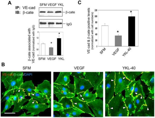 YKL-40 enhances interaction of VE-cadherin and β-catenin, but VEGF attenuates the interaction in HMVECsA. (Top) HMEVC lysates treated 24 hr with serum-free medium (SFM) with or without 10 ng/mL VEGF, or 200 ng/mL recombinant YKL-40 were immunoprecipated with an anti-VE-cad Ab and probed for β-cate by western blotting. IgG was used as IP control. (Bottom) Quantification of the western blots above, normalized to IgG levels. *P<0.05 compared with SFM. n=3. B. Representative images of VE-cad (red) and β-cate (green) double stained HMVECs in the presence of either SFM, 10 ng/mL VEGF, or 200 ng/mL for 24 hr. White arrowheads highlight the areas positively co-stained for VE-cad and β-cate (yellow). C. Quantification of the VE-cad/β-cate overlap in the images in part C. A bar: 20 μm. N=3, *P≤0.05 compared to control.