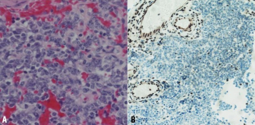 (A) Histologic picture showing small cells with some cytoplasm and vesicular nuclei (H&E, ×400). (B) Results of immunohistochemical staining indicating the loss of SMARCB1 (INI1/hSNF5) expression in neoplastic cells (IHC, ×100).