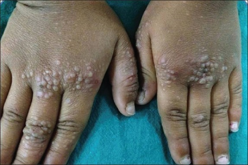 Papules white Pearly penile