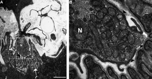 Electron microscopy view showing an interposition of the terminal Schwann cell (TSC) between the axon terminal and the postsynaptic muscle membrane. (A, B) The membrane of the TSC (star) invades the synaptic cleft (arrowhead) and encases the nerve terminal (N). Secondary synaptic clefts are maintained (white arrow). Note in (B) that the area of the muscle postsynaptic membrane facing the residual part of the nerve terminal (black arrow), available for neurotransmission, is very narrow. Scale bar, 2 μm.