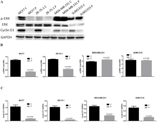Phenformin downregulates cyclin D1 expression and inactivates the MAPK/ERK pathway.(A) MCF7, ZR-75-1, MDA-MB-231 and SUM1315 cells were treated with or without phenformin for 24 hours. Cell extracts were analyzed by western blotting to detect the expression of cyclin D1, p-ERK, ERK and GAPDH. (B) Western blotting ratio analysis of p-ERK to ERK, (C) Cyclin D1 to GAPDH. The data are presented as the mean±SEM of three replicates per group. Asterisks indicate significant differences at p<0.05 by Student's t test. Phenformin-treated cells were labeled as P and control cells were labeled as C.