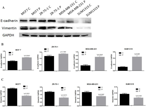 Phenformin induces epithelial features in breast cancer cells.(A) MCF7, ZR-75-1, MDA-MB-231 and SUM1315 cells were treated with or without phenformin for 24 hours. Cell extracts were analyzed by western blotting to detect the expression of E-cadherin, vimentin and GAPDH. (B) Expression ratios of E-cadherin to GAPDH, (C) vimentin to GAPDH. The data are presented as the mean±SEM of three replicates per group. Asterisks indicate significant differences at p<0.05 by Student's t test. Phenformin-treated cells were labeled as P and control cells were labeled as C.