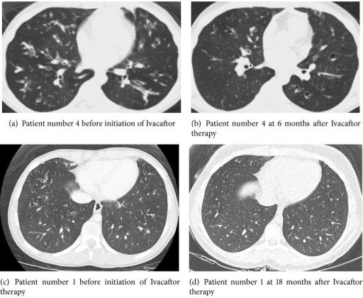 CT of the chest before and after Ivacaftor. Two representative chest CT slices of patient number 4 ((a) and (b), 16-year-old male) at the same anatomic region before and after Ivacaftor therapy. They demonstrate decreased mucus impaction in the latter scan despite the continued presence of bronchiectasis. Decreased mucus impaction probably explains improved lung function (Figures 2 and 3) despite irreversible nature of bronchiectasis. In the bottom panels ((c) and (d)) are the chest CT of another patient (14-year-old female) who already had established bronchiectasis in the peripheral airways before Ivacaftor (c) which has been resolved 18 months after Ivacaftor therapy (d).