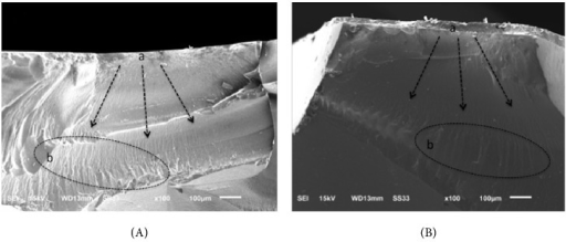 SEM micrographs of polished monolithic (PM) (A) and glazed monolithic (GM) (B) fractured specimens, indicating similar fracture mechanism between them, whereby crack propagation (arrows) starts at occlusal surface (a), and hackles and lines (b) perpendicular to crack origin may be observed.