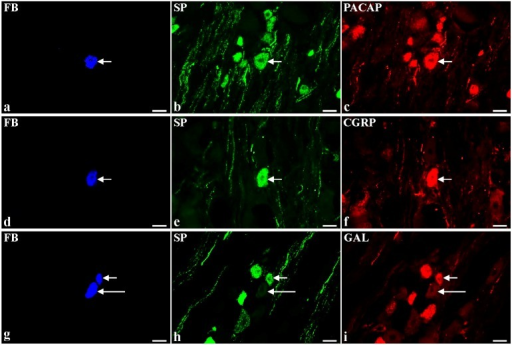 Representative images of substance P-positive (SP+) dorsal root ganglia (DRG)-urinary bladder-projecting neurons (UBPN) in control pigs. All images were taken separately from blue (a,d,g,j,m,p), green (b,e,h,k,n,r) and red (c,f,i,l,o,s) fluorescent channels; a–c One fast blue-positive (FB+) neuron (a, blue, arrow), which simultaneously contains SP (b, green, arrow) and pituitary adenylate cyclase activating peptide-PACAP (c, red, arrow). d–f One FB+ neuron (d, blue, arrow), which is simultaneously SP+ (e, green, arrow) and calcitonin gene-related peptide-positive (CGRP+, f, red, arrow). g–i Two FB+ neurons (g, blue, 1 short arrow, 1 long arrow), which are simultaneously SP+ (h, green, 1 short arrow) or SP-negative (h, green, 1 long arrow) and galanin-positive (GAL+, i, red, 1 short arrow) or GAL-negative (GAL-, i, red, 1 red arrow). j–l One FB+ neuron (j, blue, arrow), which simultaneously contains neuronal nitric oxide synthase-nNOS (k, green, arrow) and SP (l, red, arrow). m–o One FB+ neuron (m, blue, arrow), which is simultaneously calbindin-positive (CB+, n, green, arrow) and SP+ (o, red, arrow). p-s One FB+ neuron (p, blue, arrow), which simultaneously contains SP (r, green, arrow) and somatostatin-SOM (s, red, arrow). Bars 50 μm (a–s).