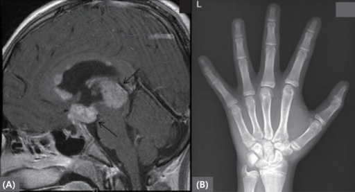 (A) Brain magnetic resonance imaging revealing mass lesions at pineal gland and suprasellar area. (B) Left hand bone age radiograph at diagnosis. The arrow indicates pineal gland and suprasellar area masses.