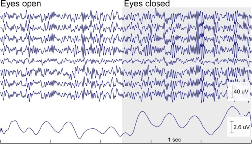 Continuous cEEGrid EEG data (5 s) with eyes open and eyes closed of one participant for a cEEGrid on the right side. Below is the mean amplitude of the alpha band (8–12 Hz). The increase in alpha band activity is readily visible in the raw signal and in the amplitude of the alpha band activity as soon as the eyes are closed. The effect is wide spread and can be seen on all cEEGrid channels.