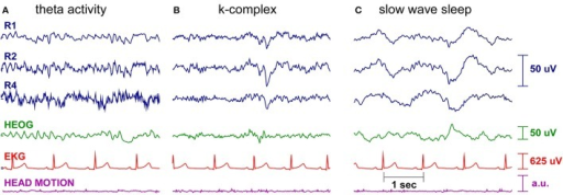 Single subject sleep EEG recording. Shown are three right ear cEEGrid EEG channels (blue), the horizontal electrooculogram (green), the electrocardioagram (red), and the head motion, as measured by the Smarting amplifier gyroscope (purple). Different characteristic sleep patterns are clearly visible, such as (A) theta activity, (B) k-complexes, and (C) slow wave sleep.