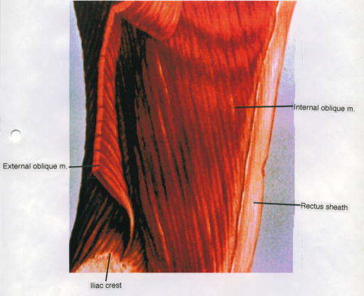 internal oblique muscle; external oblique muscle; iliac crest; rectus sheath