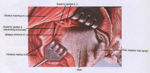 gluteus maximus muscle; gluteus minimus muscle; gluteus medius muscle; superior gluteal nerve; superior gluteal artery; ilium; superior iliac spine