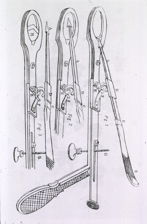 <p>Three views showing operation of an instrument for excising diseased tonsils.</p>