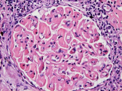 Light Microscopy. There is marked, global, homogeneous, eosinophilic thickening of the glomerular basement membrane with segmental accentuation. Homogeneous, eosinophilic globules are seen in the lumen of occasional capillary loops. The capillary lumina appear reduced in diameter but no inflammatory or proliferative changes are observed. The periglomerular interstitial space shows lymphocytic infiltration. Focal interstitial deposition of homogeneous eosinophilic material is present in the right upper corner of the picture (H&E × 400).