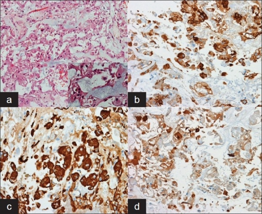 (a) On medium-magnification, eosinophilic neoplastic cells can be seen in the midst of a mucoid matrix; Inset: high-powered magnification shows markedly foamy cytoplasm in some neoplastic cells (the so-called physaliphorous cell). Immunohistochemical staining for (b) epithelial membrane antigen, (c) Pan-cytokeratin, and (d) S-100 demonstrate positive staining for all three in the neoplastic cells. This pattern of immunohistochemical staining, coupled with the histologic characteristics of the tumor, are consistent with a chordoma of the skull base.
