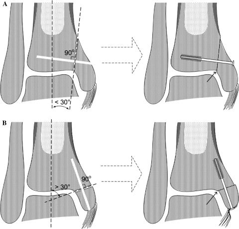 Schematic drawings of wrong techniques in which the osteotomy angle is too vertical (a) or too horizontal (b), resulting in a step off at the articular surface (small arrows)