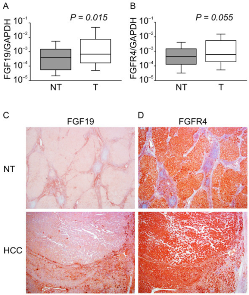 Real-time quantitative RT-PCR analysis, immunohistochemical staining of representative specimens from HCC patients of 40 HCC samples. (A): Ratio of average FGF19/GAPDH expression in HCC (T) compared with corresponding noncancerous hepatic tissues (N). The average FGF19/GAPDH level in HCCs. (B): The average FGFR4/GAPDH level in HCCs. (C): Immunohistochemistry using anti-FGF19 monoclonal antibodies; HCC tissue (lower) and noncancerous hepatocytes (upper). (D): Immunohistochemistry using anti-FGFR4 monoclonal antibodies; HCC tissue (lower) and noncancerous tissue (upper). (Original magnifications: ×40 (upper); ×40 (lower)). RT-PCR; reverse transcription polymerase chain reaction; HCC, hepatocellular carcinoma.
