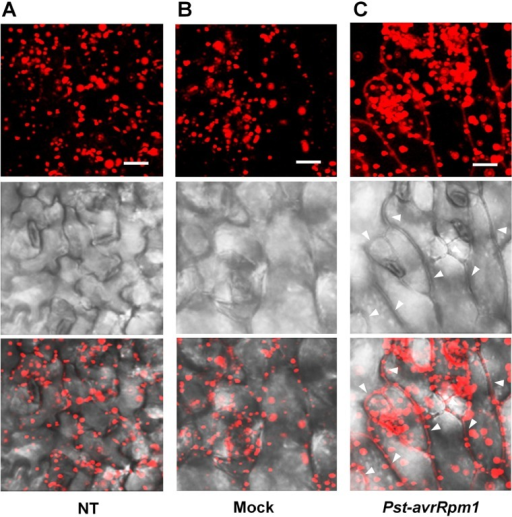 Translocation of PLA2α to apoplasts was enhanced by the inoculation of bacteria, Pst-avrRpm1, in pre-mature young leaves.(A–C) Images showing increased fluorescence intensity and vesicle sizes followed by the translocation of PLA2α to apoplasts at 3 h post-inoculation of Pst-avrRpm1 (C) compared to the no-treatment control (A) and 0.015% Silwet/10 mM MgCl2-treated mock (B) in pre-mature young leaves where PLA2α is normally localized primarily in Golgi bodies. Fluorescent (top), bright field (middle), and merged images (bottom) are presented. Bars = 20 μm.