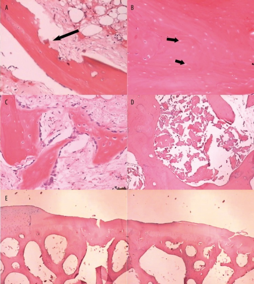 (A) Histological specimen showed damaged trabecular resorption at week 4 (HE, 40×). (B) A number of the osteocyte-filled lacunae were replaced by empty lacunae at week 8 (HE, 100×). (C) Fibrous tissue with some new bone formed at week 12 (HE, 100×). (D) Massive bone fragmentation was showed in the marrow cavities at week 25 (HE, 100×). (E) Deformation of joint contour and irregularity of the subchondral bone and loss of chondrocytes was showed at week 25 (HE, 20×).