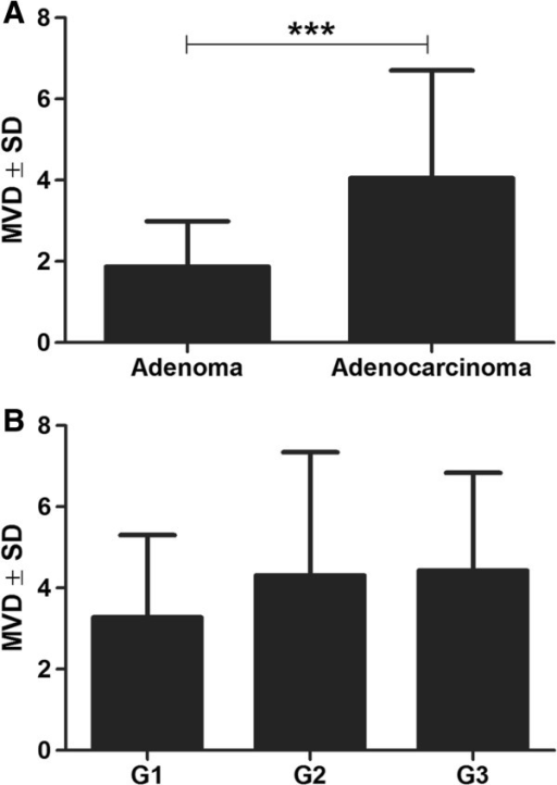 Von Willbrand Factor mean vascular density (vWF MVD) in adenomas and adenocarcinomas (A) and in relation to the grade of malignancy of the studied adenocarcinomas (B). ***P < 0.001, Mann–Whitney test.
