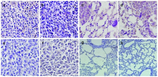 (A) Survivin and (B) vascular endothelial growth factor (VEGF) expression in the five-week primary tumor. (C) Survivin and (D) VEGF expression in the five-week lungs. No (E) survivin or (F) VEGF expression was identified in the healthy bone. No (G) survivin or (H) VEGF expression was identified in the healthy lungs (stain, hematoxylin and eosin; magnification, ×200).