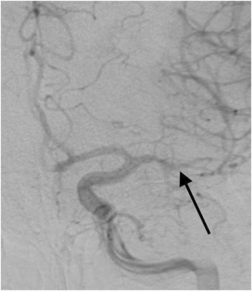 DSA confirming vasospasm in the narrowed M1 and M2 segments (indicated by the arrow) of the left middle cerebral artery.