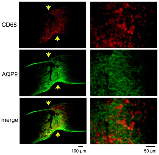 Double labeling of AQP9 and CD68 at the crushed site on day 7.Representative photographs from 3 independent samples are presented with higher magnifications in the right column. Arrows indicate crush sites. CD68 positive cells are present between the AQP9 positive fibrils suggesting that microglia/macrophages are not the cellular sources for AQP9 after crushing the optic nerve.