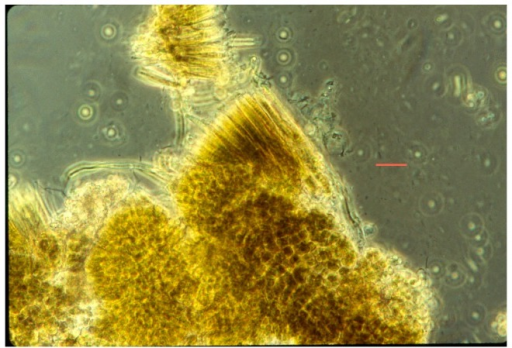 Calothrix (tapered filaments) extended from base of aggregated cells of Pleurocapsa, (non-filamentous); from piece of nodule from ~45 °C, scraped off hard substrate. Bar = 5 µm.